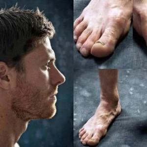 Así terminan los pies de los Futbolistas. Los más feos son los de Ronaldo
